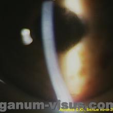 Профессор Астахов С.Ю. Тёмные стороны интраокулярной коррекции. Доклад на XX Международном офтальмологическом конгрессе Белые ночи-2014. Информационный партнер портал Орган зрения organum-visus.com